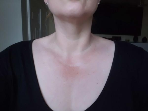 Dekollete nach vier Wochen Eucerin