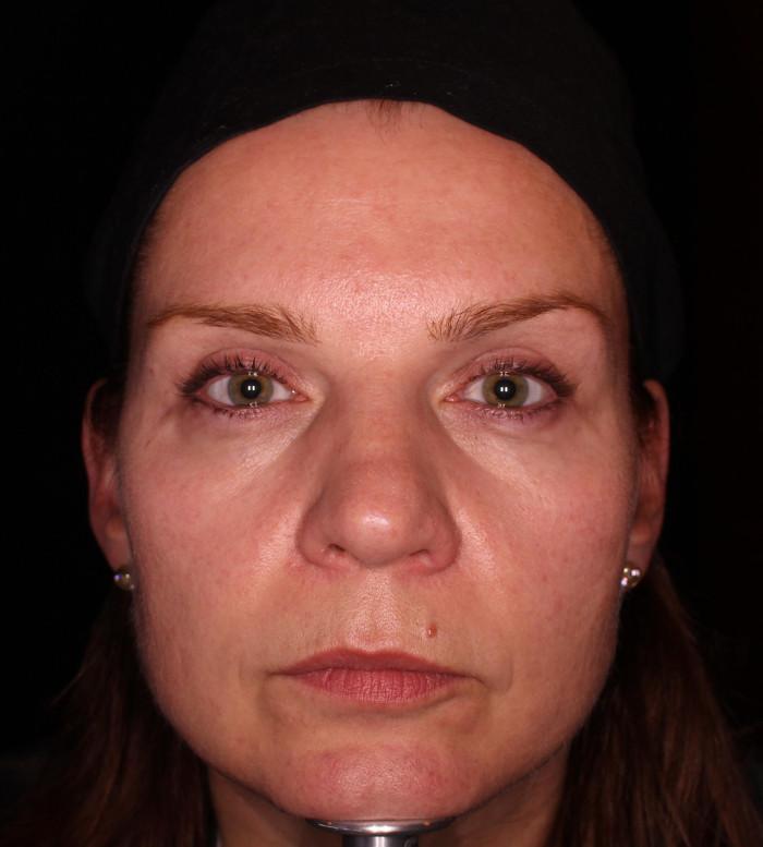 2015 05 vorher ohne Filler mit Botox und AugenOP