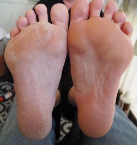 Die ultimative Fußfeile. Plus die beste Fußcreme.
