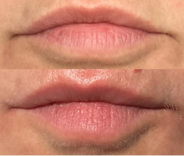 NIOD Lip Bio-Lipid Concentrate Vorher Nachher Soforteffekt