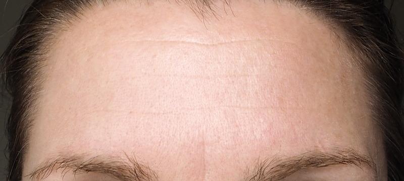 Stirnfalten Juni 2018 nach Paulas Choice Peptide Booster