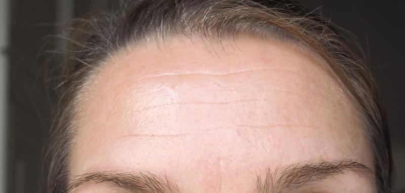 Highdroxy RESTORE Effekt auf Stirnfalten Mimikfalten